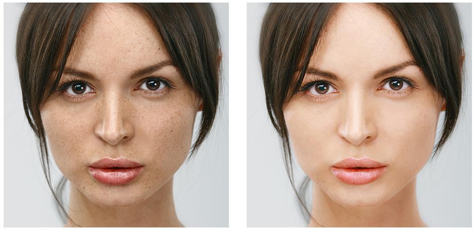 顔の修正BA